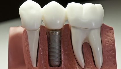 dental implants grants pass oregon, tooth replacement grants pass, dentures grants pass, bridge grants pass, dental implant dentist grants pass