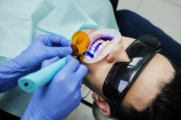 tooth whitening + restoration